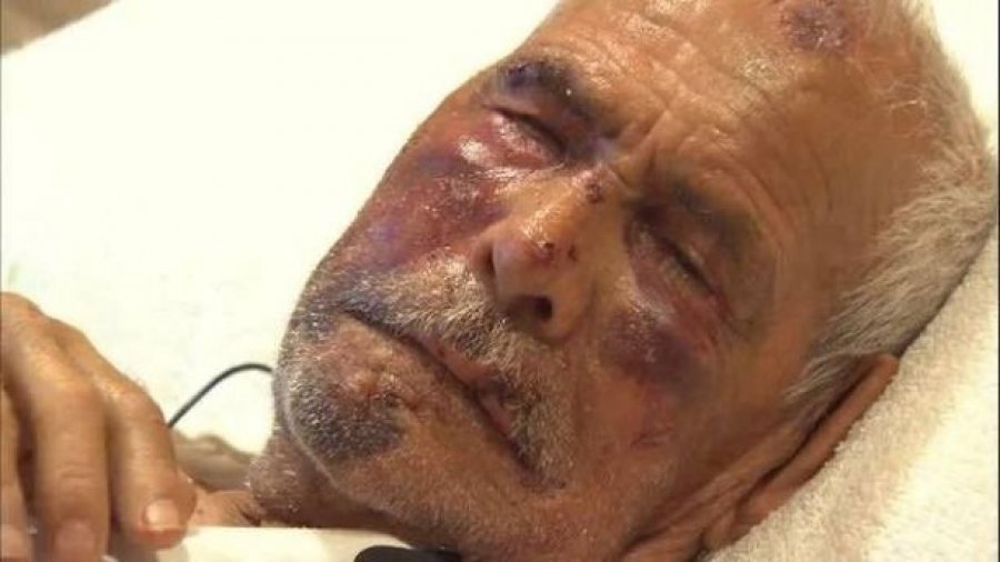 Woman arrested in brutal beating of grandfather who was told to 'go back to your country,' police say